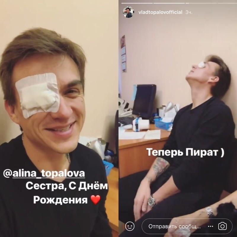 Топалов травмировал правый глаз на Дне рождения сестры